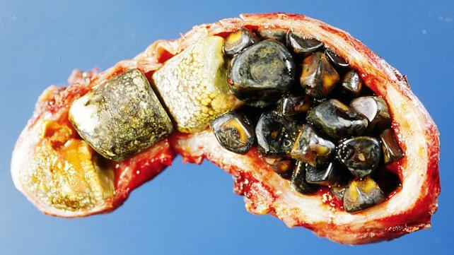 Leki rozpuszczające kamienie żółciowe